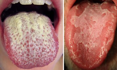 Ways to Get Rid of White Tongue and Make It Healthier